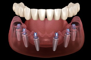 A digital image of an implant-retained denture being placed over the top of 6 dental implants