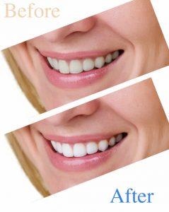 teeth whitening in Dallas